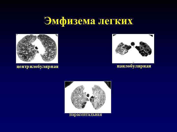 Эмфизема легких панлобулярная центрилобулярная парасептальная