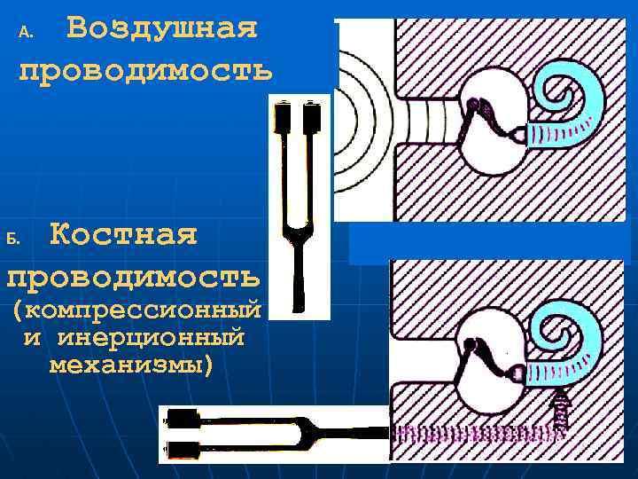 Воздушная проводимость А. Костная проводимость Б. (компрессионный и инерционный механизмы)