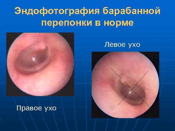 Эндофотография барабанной перепонки в норме Левое ухо Правое ухо
