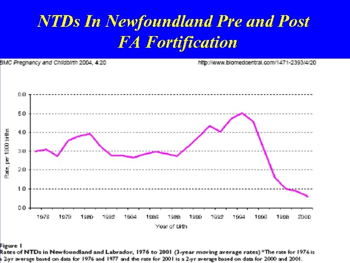 NTDs In Newfoundland Pre and Post FA Fortification 30