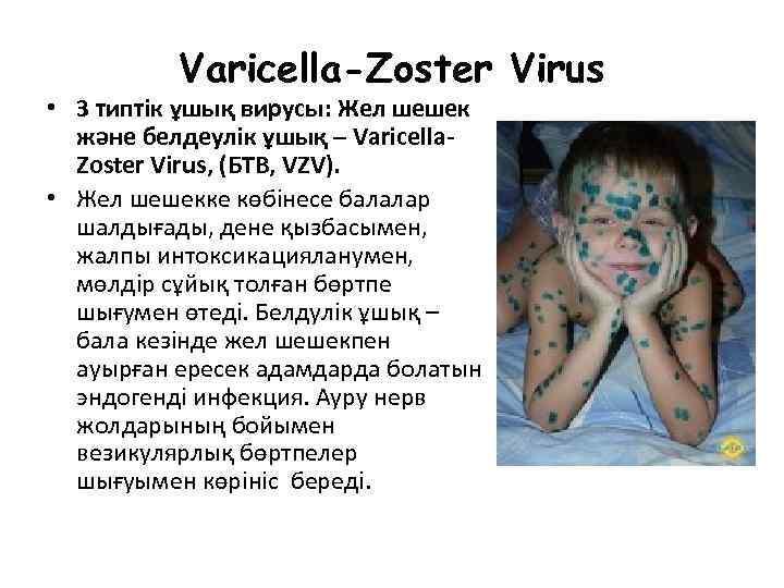 Varicella-Zoster Virus • 3 типтік ұшық вирусы: Жел шешек және белдеулік ұшық – Varicella.