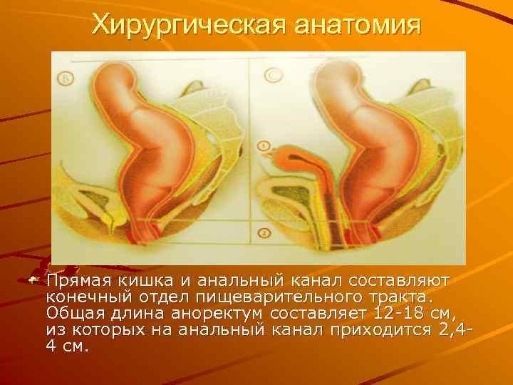 Хирургическая анатомия Прямая кишка и анальный канал составляют конечный отдел пищеварительного тракта. Общая длина