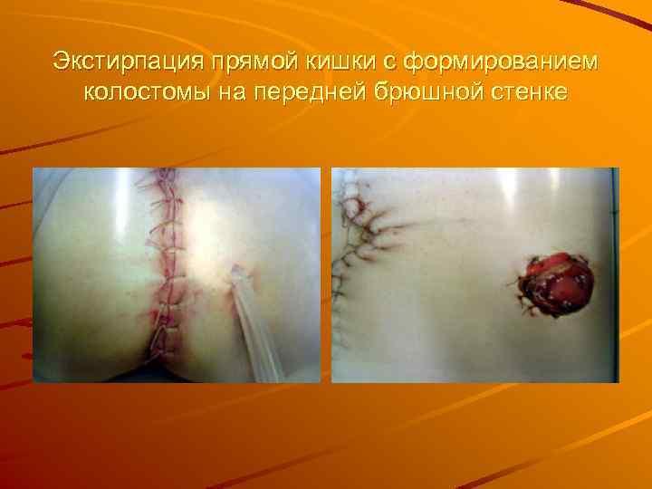 Экстирпация прямой кишки с формированием колостомы на передней брюшной стенке
