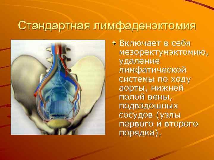 Стандартная лимфаденэктомия Включает в себя мезоректумэктомию, удаление лимфатической системы по ходу аорты, нижней полой