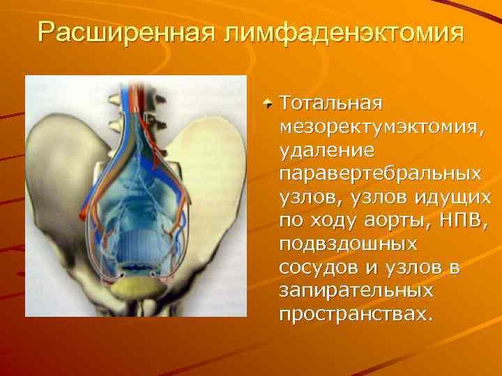 Расширенная лимфаденэктомия Тотальная мезоректумэктомия, удаление паравертебральных узлов, узлов идущих по ходу аорты, НПВ, подвздошных