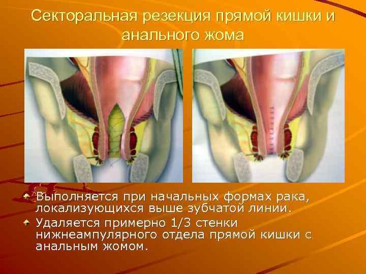 Секторальная резекция прямой кишки и анального жома Выполняется при начальных формах рака, локализующихся выше