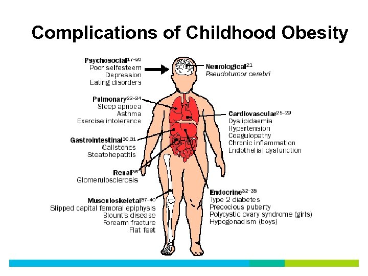 Complications of Childhood Obesity
