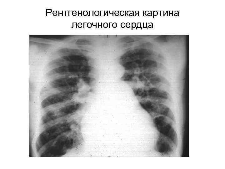 тихонов рентгенсемиотика сердечной недостаточности