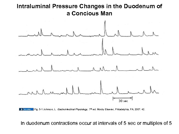 Intraluminal Pressure Changes in the Duodenum of a Concious Man Fig. 5 -1 Johnson,