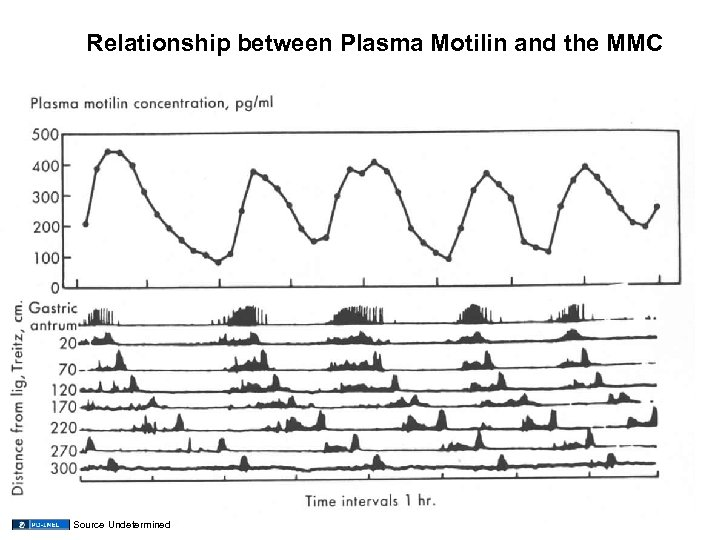 Relationship between Plasma Motilin and the MMC Source Undetermined