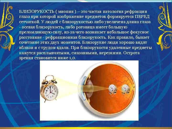 БЛИЗОРУКОСТЬ ( миопия ) – это частая патология рефракции глаза при которой изображение предметов