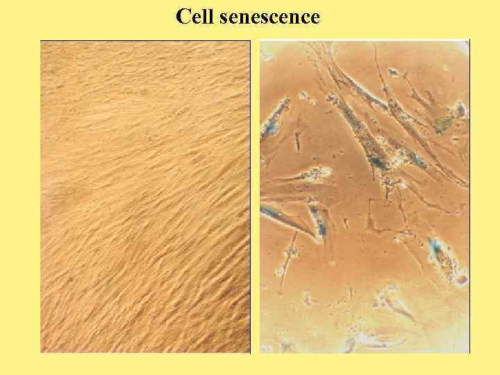 Cell senescence