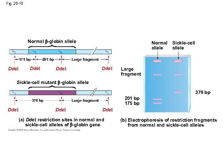 Fig. 20 -10 Normal -globin allele 175 bp Dde. I Sickle-cell allele Large fragment