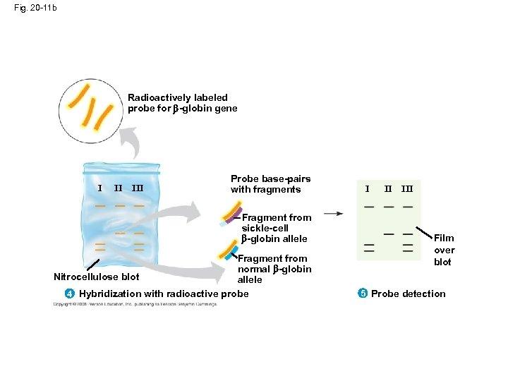 Fig. 20 -11 b Radioactively labeled probe for -globin gene I II III Probe