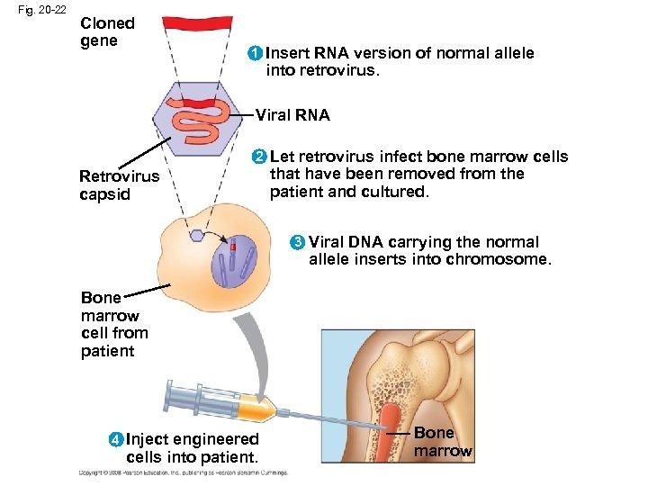 Fig. 20 -22 Cloned gene 1 Insert RNA version of normal allele into retrovirus.