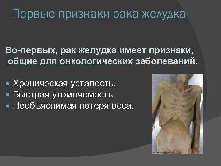 Первые признаки рака желудка Во-первых, рак желудка имеет признаки, общие для онкологических заболеваний. Хроническая