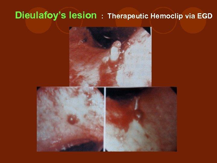 Dieulafoy's lesion : Therapeutic Hemoclip via EGD