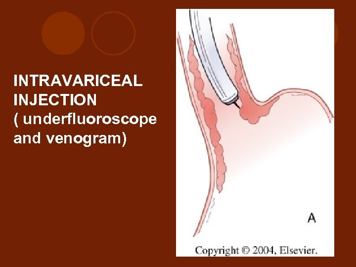 INTRAVARICEAL INJECTION ( underfluoroscope and venogram)