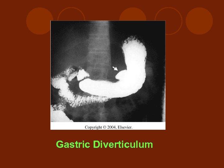 Gastric Diverticulum