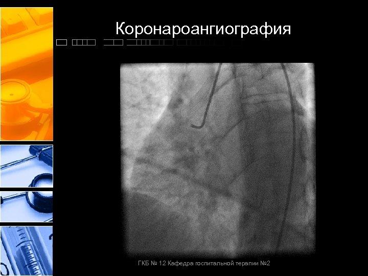 Коронароангиография ГКБ № 12 Кафедра госпитальной терапии № 2