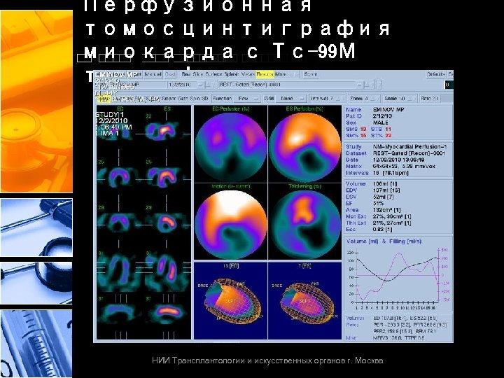 Перфузионная томосцинтиграфия миокарда с Тс-99 М тетрофосмином НИИ Трансплантологии и искусственных органов г. Москва