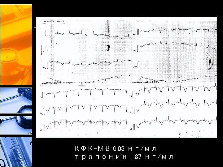 КФК-МВ 0, 03 нг/мл тропонин 1, 87 нг/мл