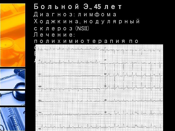 Больной Э. , 45 лет Диагноз: лимфома Ходжкина, нодулярный склероз (NSII) Лечение: полихимиотерапия по