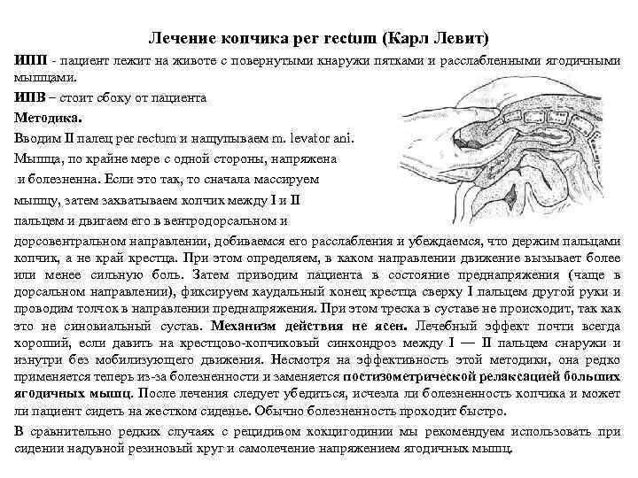 Лечение копчика per rectum (Карл Левит) ИПП - пациент лежит на животе с повернутыми