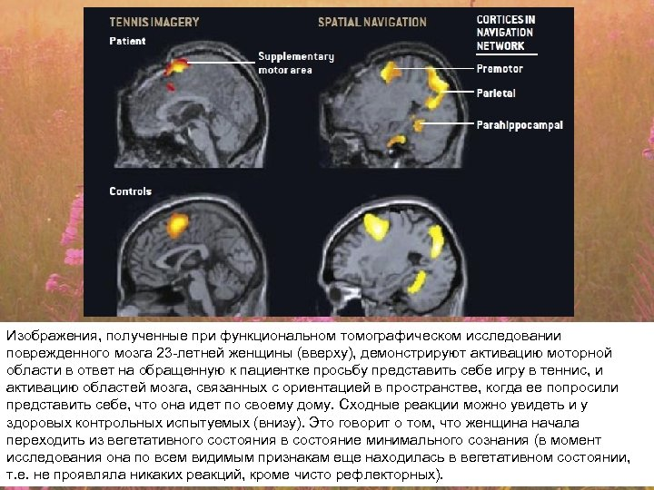 Изображения, полученные при функциональном томографическом исследовании поврежденного мозга 23 -летней женщины (вверху), демонстрируют активацию