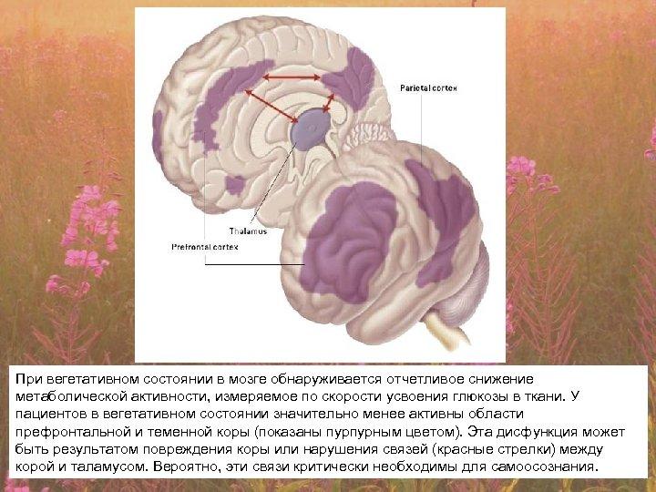 При вегетативном состоянии в мозге обнаруживается отчетливое снижение метаболической активности, измеряемое по скорости усвоения