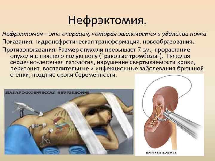 Нефрэктомия – это операция, которая заключается в удалении почки. Показания: гидронефротическая трансформация, новообразования. Противопоказания: