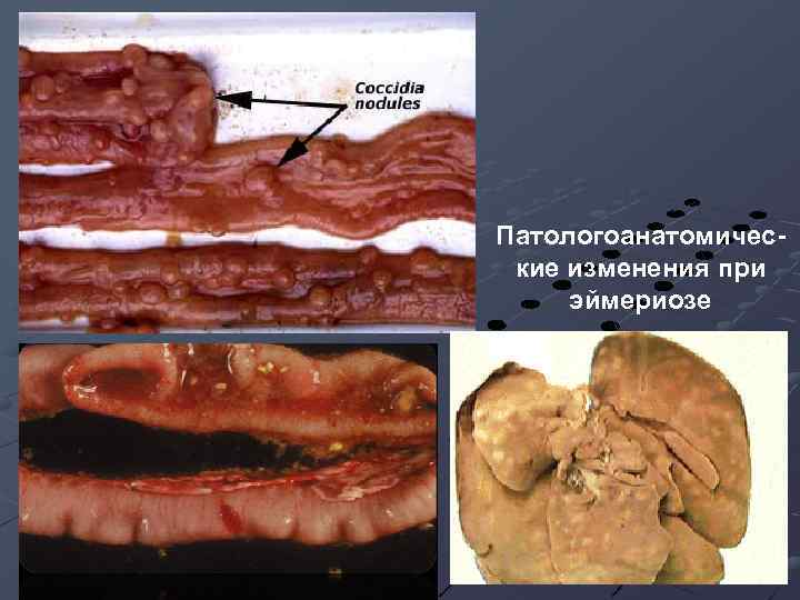 Патологоанатомические изменения при эймериозе