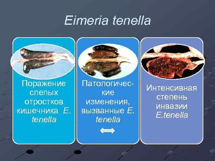 Eimeria tenella Поражение слепых отростков кишечника E. tenella Патологические изменения, вызванные E. tenella Интенсивная