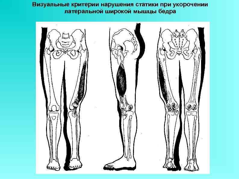 Визуальные критерии нарушения статики при укорочении латеральной широкой мышцы бедра