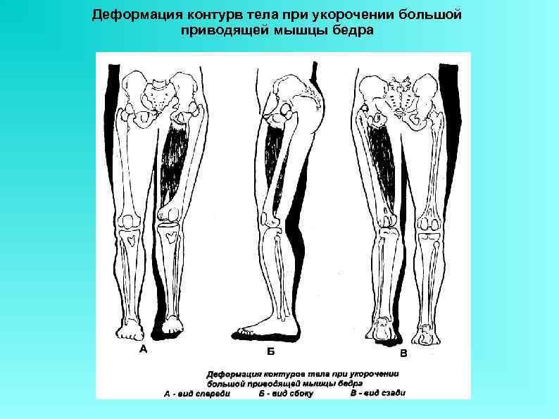Деформация контурв тела при укорочении большой приводящей мышцы бедра