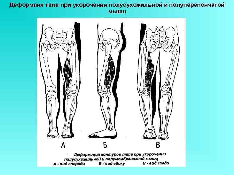 Деформаия тела при укорочении полусухожильной и полуперепончатой мышц