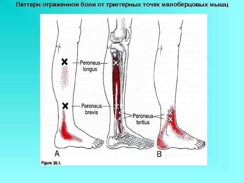 Паттерн отраженной боли от триггерных точек малоберцовых мышц