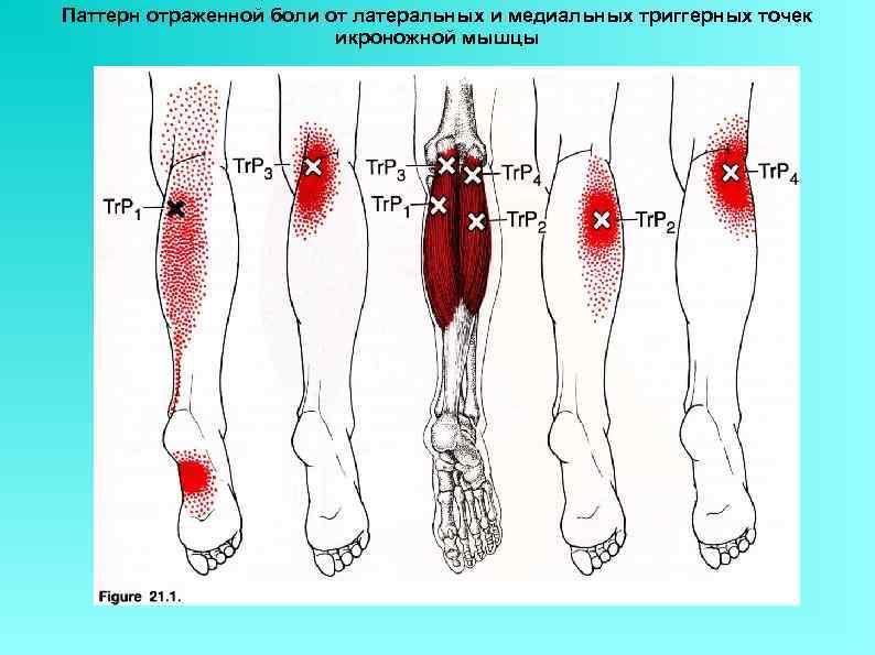 Паттерн отраженной боли от латеральных и медиальных триггерных точек икроножной мышцы