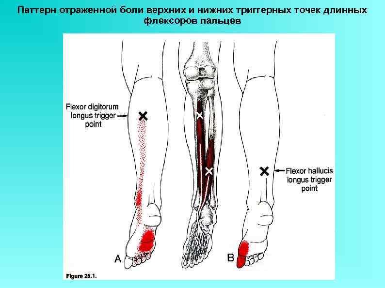 Паттерн отраженной боли верхних и нижних триггерных точек длинных флексоров пальцев