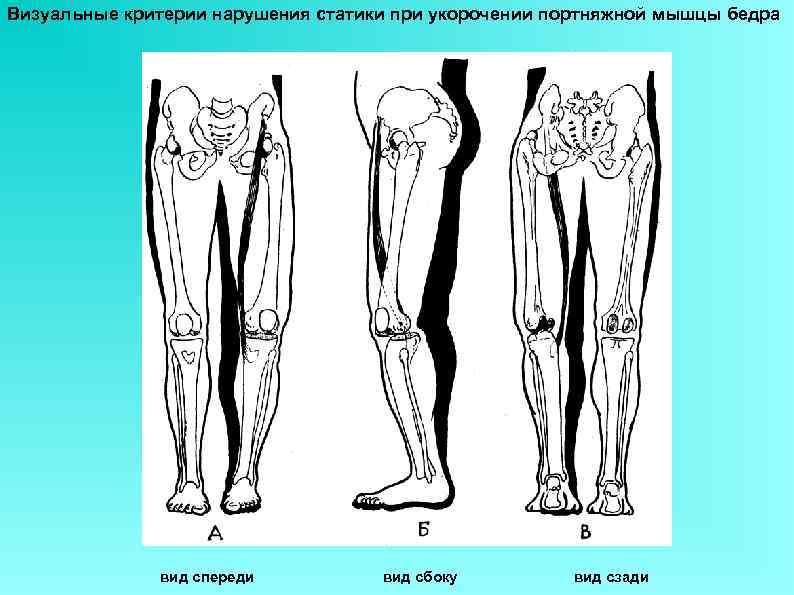 Визуальные критерии нарушения статики при укорочении портняжной мышцы бедра вид спереди вид сбоку вид