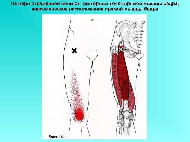 Паттерн отраженной боли от триггерных точек прямой мышцы бедра, анатомическое расположение прямой мышцы бедра