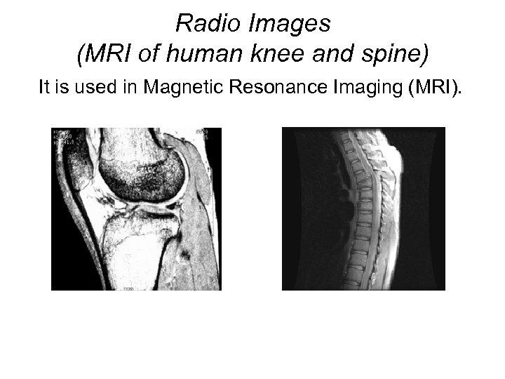 Radio Images (MRI of human knee and spine) It is used in Magnetic Resonance