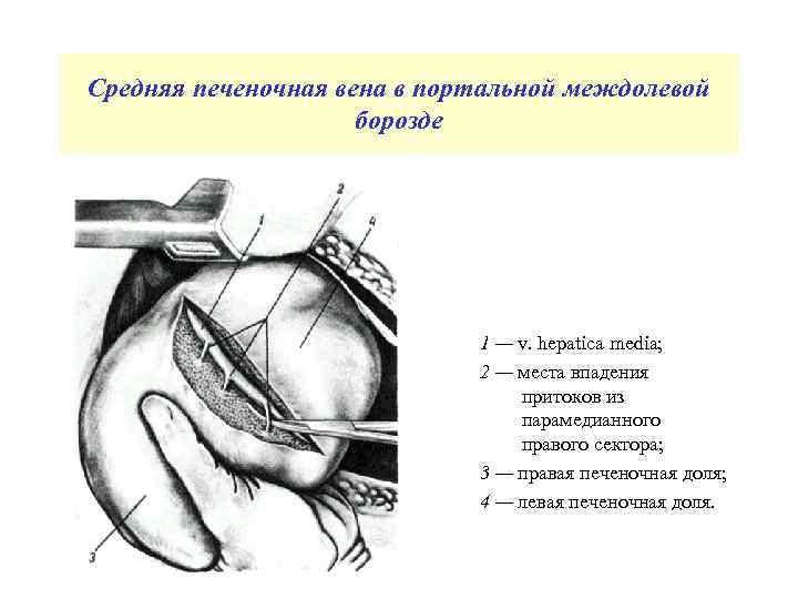 Средняя печеночная вена в портальной междолевой борозде 1 — v. hepatica media; 2 —
