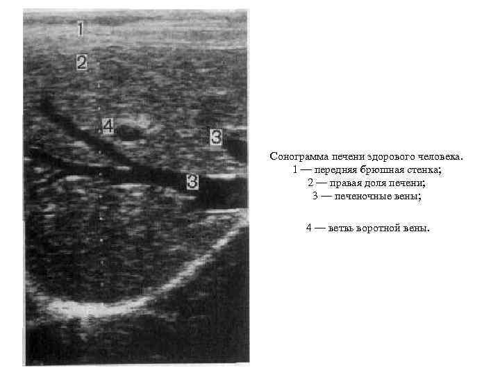 Сонограмма печени здорового человека. 1 — передняя брюшная стенка; 2 — правая доля печени;