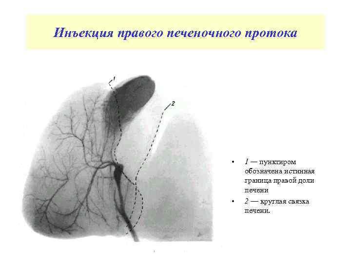 Инъекция правого печеночного протока • • 1 — пунктиром обозначена истинная граница правой доли