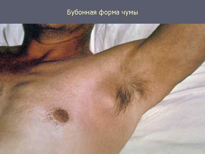 Картинка чумы болезнь