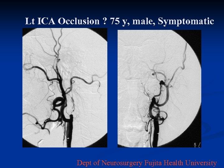 Lt ICA Occlusion ? 75 y, male, Symptomatic Dept of Neurosurgery Fujita Health University