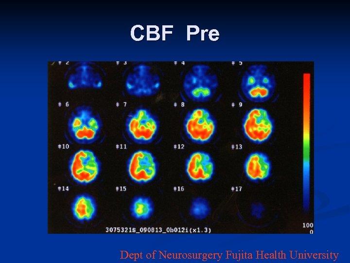 CBF Pre Dept of Neurosurgery Fujita Health University