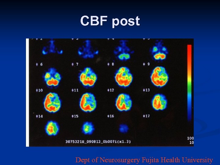 CBF post Dept of Neurosurgery Fujita Health University