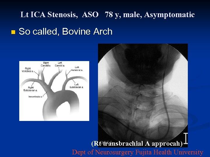 Lt ICA Stenosis, ASO 78 y, male, Asymptomatic n So called, Bovine Arch (Rt